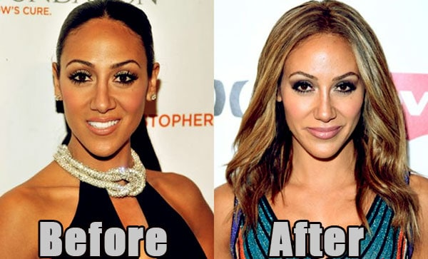 Image of Melissa Gorga plastic surgery before and after