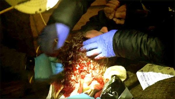 Image of Alaskan Bush people Matt Brown had a serious head injury